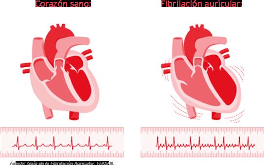 Dolor de muñeca presión arterial