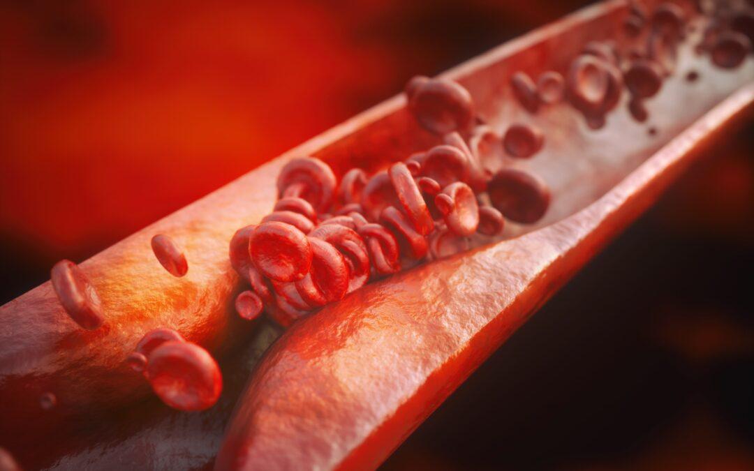 Tras un infarto de miocardio, el colesterol LDL cuanto más bajo mejor