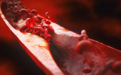 Más del 80% de los pacientes de alto y muy alto riesgo cardiovascular no alcanza las cifras objetivo de colesterol LDL