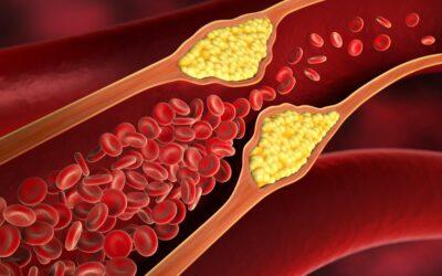 Partículas HDL de gran tamaño aumentan el riesgo cardiovascular en la insuficiencia cardiaca